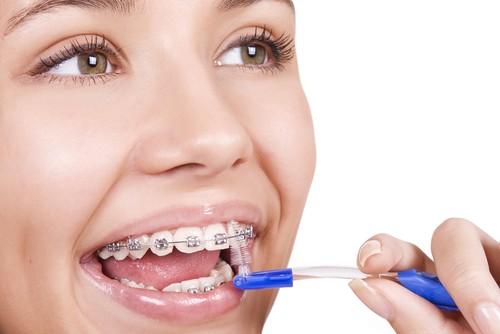Aparelho Fixo clinica dentista em sorocaba