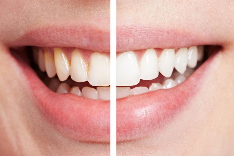Clareamento-Dental-clinica dentista em sorocaba