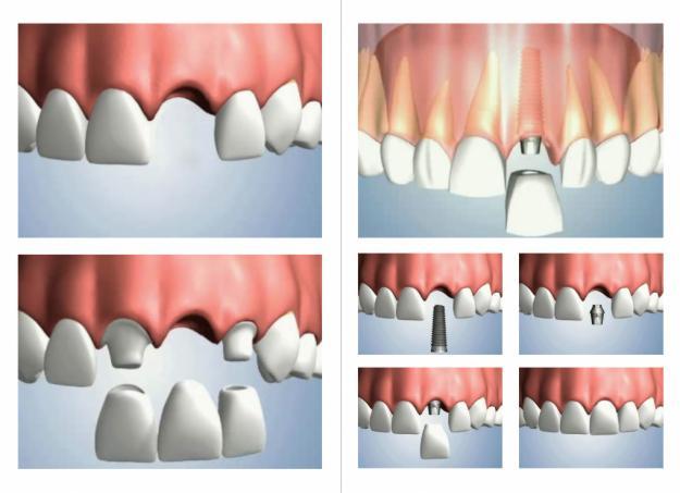 Implantes Unitários ou Múltiplos clinica dentista em sorocaba