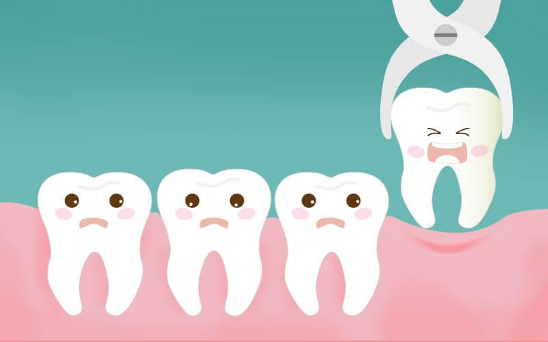extracao-de-sisos-clinica dentista em sorocaba
